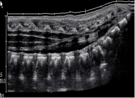 Ultrasound Pediatric Spine