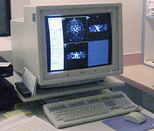 MRI computer monitor