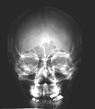 Radiograph of a human skull